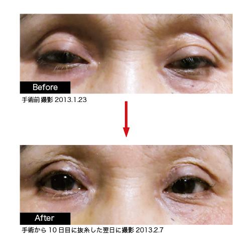 R Ricoママの快気祝い♪眼瞼下垂症術後報告@昇龍閣/酒田